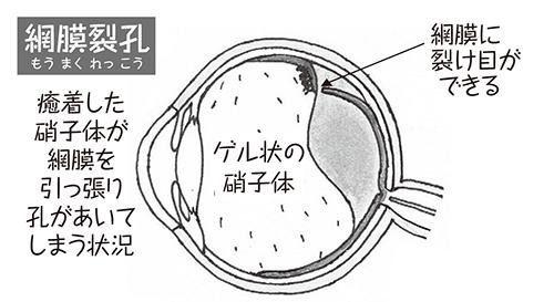 rekkougenseimoumakuhakuri01