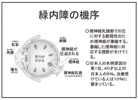 ryokunaisyou01