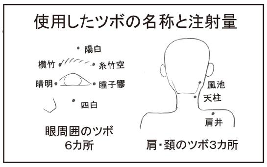 ryokunaisyou03